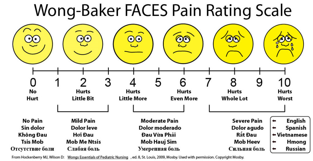 Frequently used scale for measuring pain.